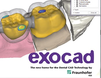 CAD Software exocad - Whitepeaks Dental Solutions